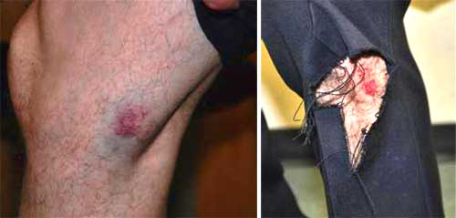 Photographs of injuries officers received from items thrown at them during the recent demonstrations